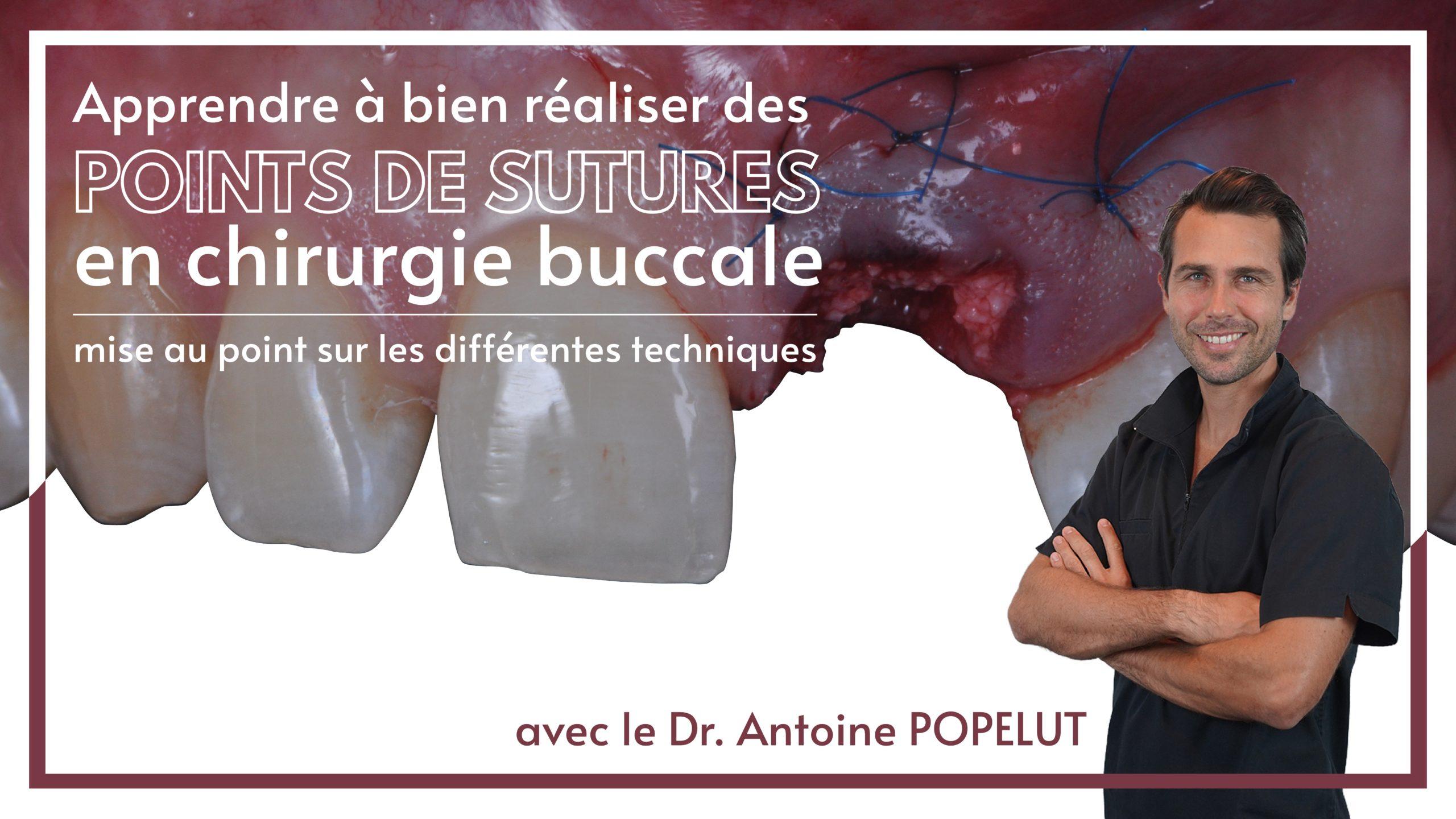 Bien réaliser des sutures en dentaire