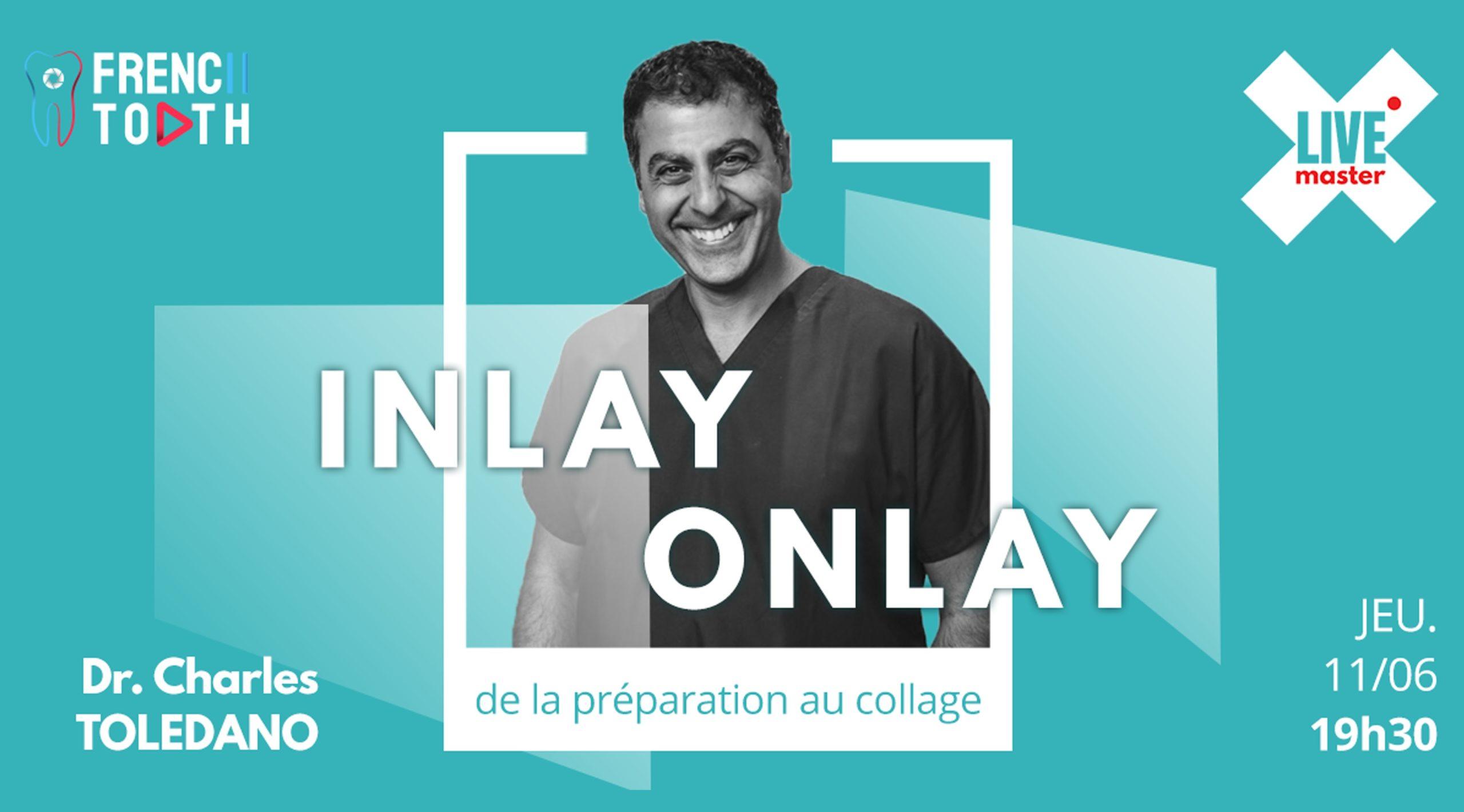 INLAY / ONLAY de la préparation au collage