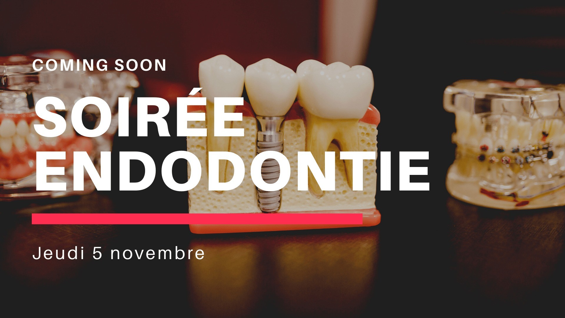 Soirée endodontie