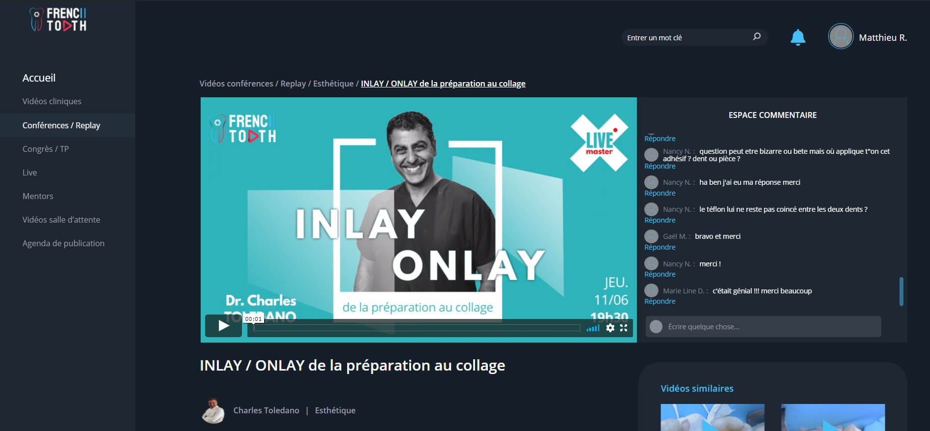 chat et discussion instantannée sur la plateforme French Tooth
